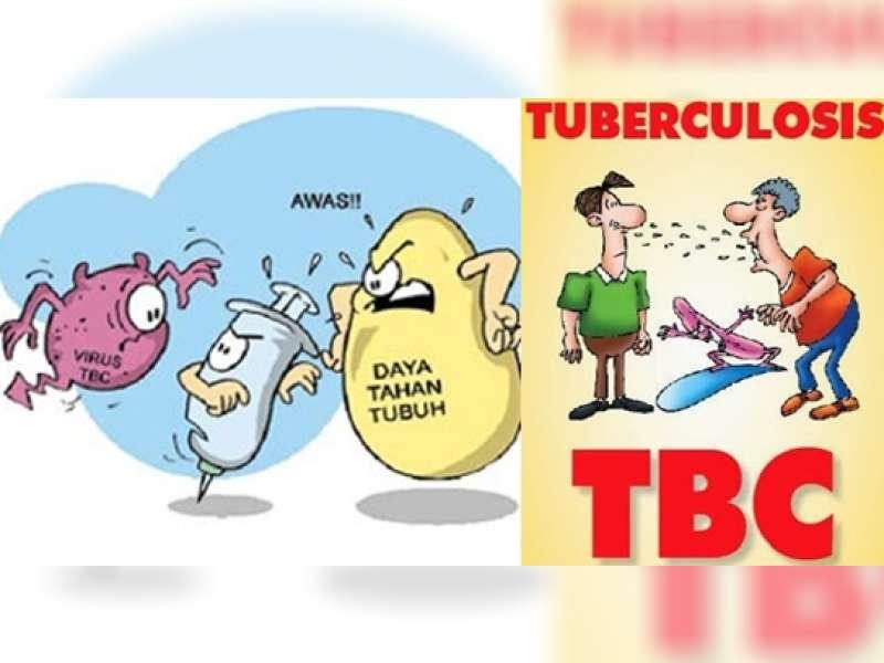 Meningkatnya Kasus HIV Berdampak pada Tingginya Kasus TB