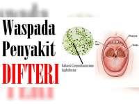 Warga Bojonegoro Perlu Waspada Penyakit Difteri