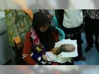 Maulana, Penderita Meningoencephalocele Sudah Dirawat di RS Dokter Soetomo Surabaya